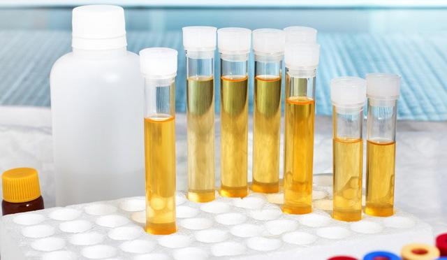 Лейкоциты сплошь в моче: причины и возможные заболевания