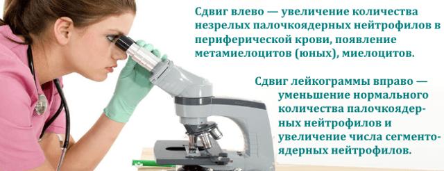 Общий анализ крови с формулой - расшифровка: норма и отклонение показателей