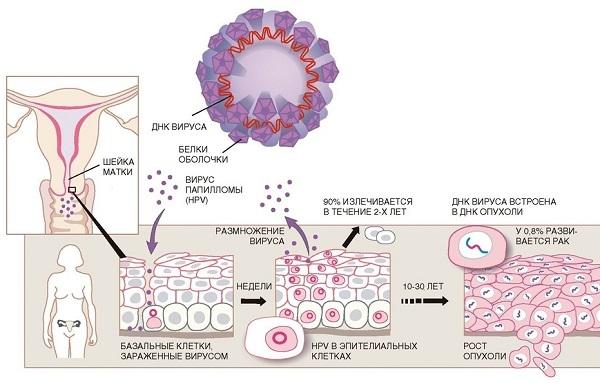 Вирус папилломы человека высокого онкогенного риска: симптоматика, терапия и прогноз