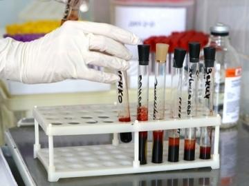 Анализ d-димер: назначение, процедура анализа, норма показателя и возможные заболевания