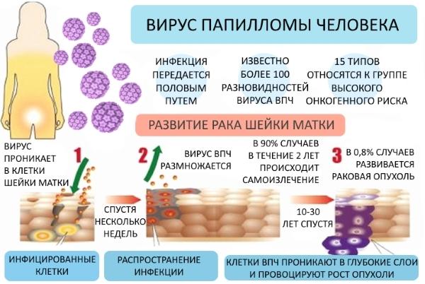Папилломавирусная инфекция у женщин: симптомы, терапия и возможные последствия