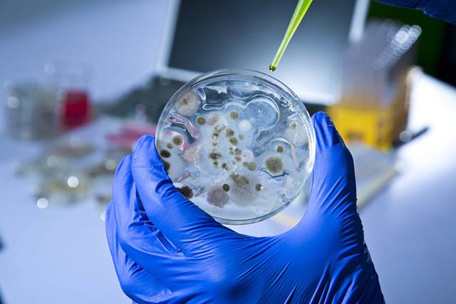 Анализ на скрытые инфекции у женщин: виды, подготовка и процедура