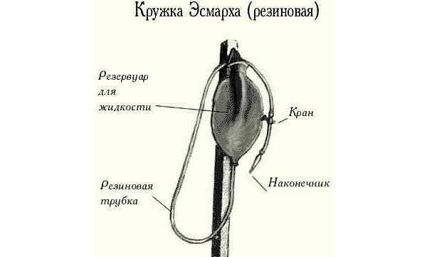 Фиброскопия кишечника: показания к обследованию, преимущества и процедура диагностики