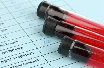 Повышенная мочевая кислота в крови: медикаментозное и народное лечение