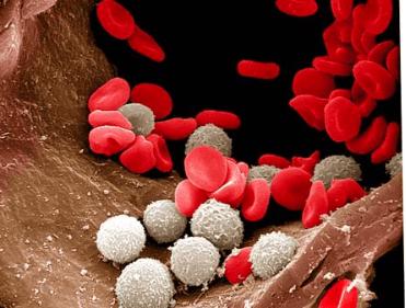 Анализ крови: о чем говорят повышенные лейкоциты в крови?
