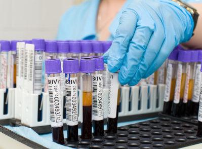 Симптомы при гепатите, билирубин в крови, лечение гепатита