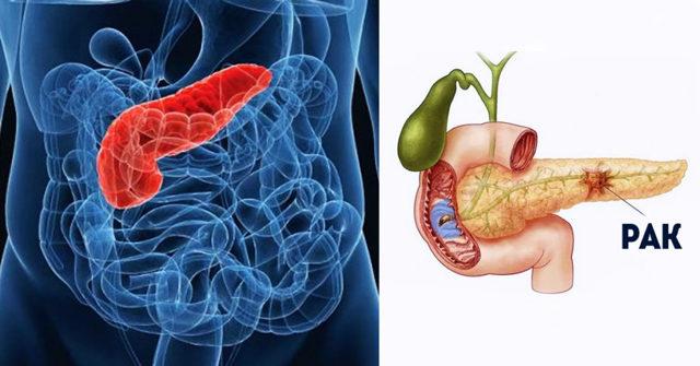 Онкомаркер СА 19-9 - раковый антиген поджелудочной железы: норма и патология
