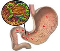 Признаки хеликобактер пилори и методика лечения хеликобактериоза