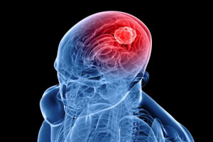 Виды злокачественных опухолей, механизм их развития и общая опасность для организма