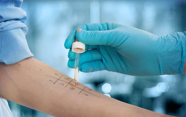 Как выявить аллерген - виды анализов и их особенности