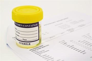 Расшифровка простатспецифического антигена у мужчин: норма и отклонения от нормы