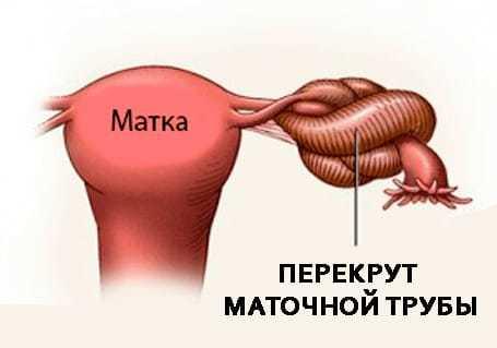 Снимок маточных труб - расшифровка: норма и патология