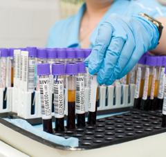Биохимический анализ крови на АСТ: норма фермента, причины отклонения и возможные заболевания