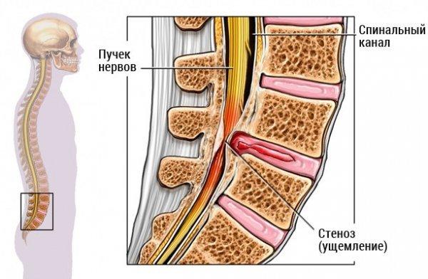 Стеноз позвоночного канала: что это такое, причины, симптоматика и способы лечения