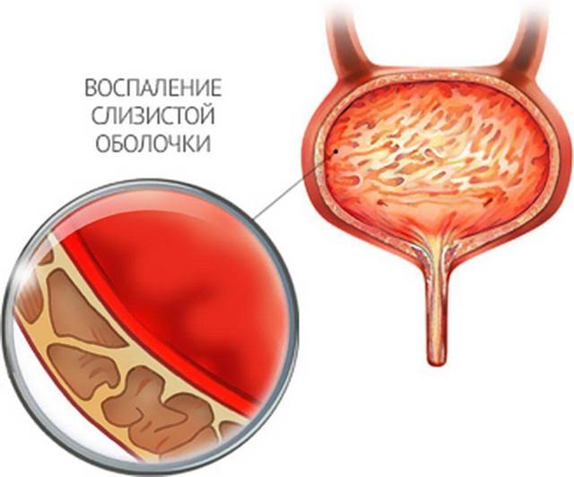 Почему моча с кровью: у мужчин, женщин и во время беременности