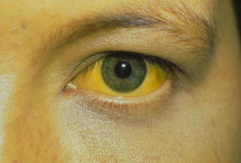 Желтуха – это какой гепатит: связь желтухи и гепатита