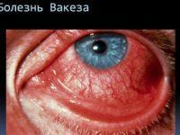 Полицитемия вера - симптомы заболевания