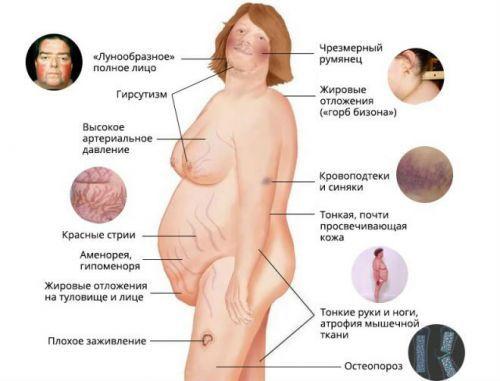 Нарушение работы надпочечников: причины, симптомы, диагностика и методы лечения