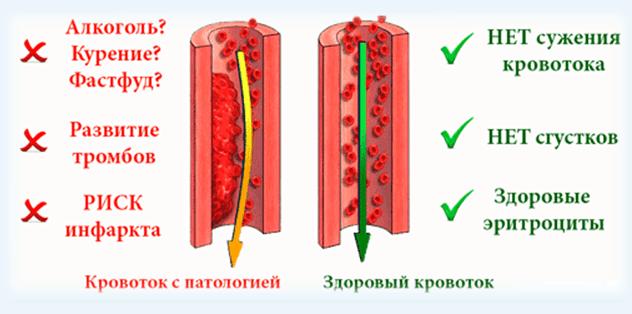 Чем разжижать густую кровь: медикаментозные и народные средства
