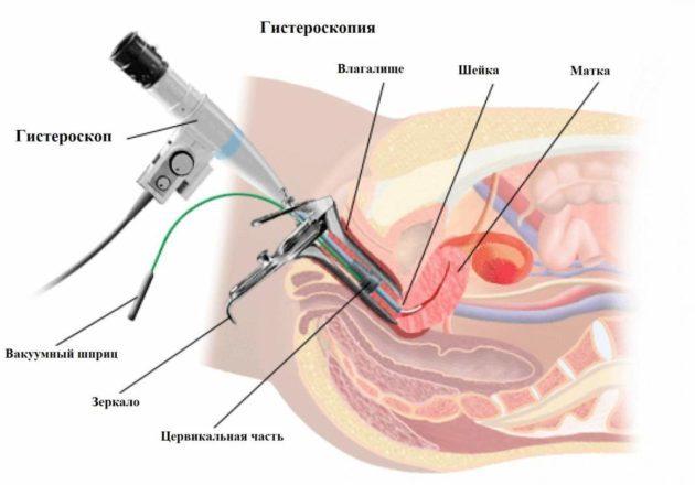 Кровяные выделения в середине цикла: причины, диагностика, лечение и прогноз