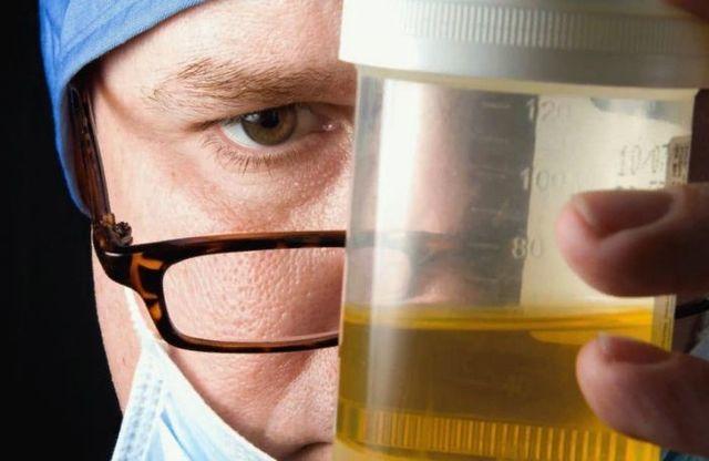 Сильно пахнет моча: причины и возможные заболевания