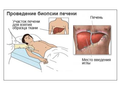 Диффузные изменения структуры печени - причины, симптоматика, методы лечения и профилактика патологии