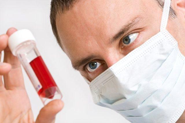 Лимфоциты в крови у мужчин: норма показателя и причины отклонения