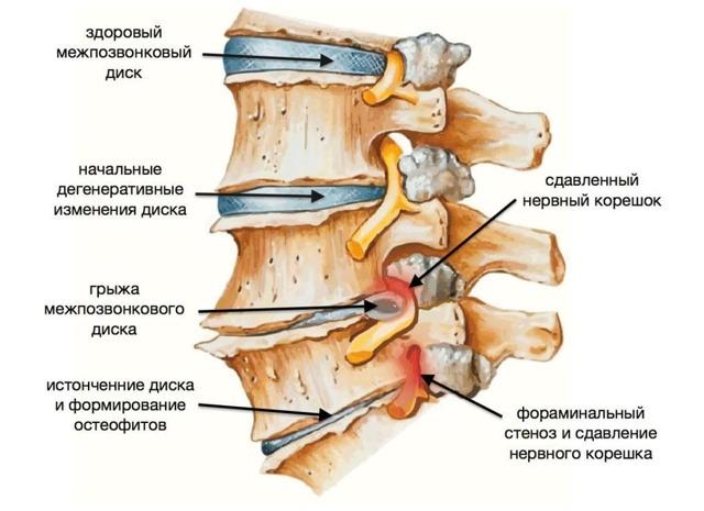 Показания к МРТ: головного мозга, брюшной полости, органов малого таза, позвоночника и суставов