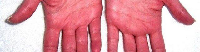 Полицитемия вера: анализы крови, костного мозга, генетический тест