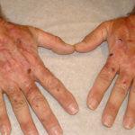 Диагностика гемохроматоза — какие анализы может назначить врач
