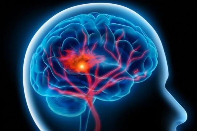 Геморрагический инсульт: признаки приступа, первая помощь и прогноз для жизни