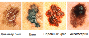 Как лечится начальная меланома (стадии 0, 1, 2)