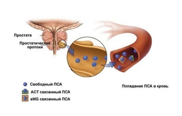 Исследование крови на ПСА: особенности проведения анализа и расшифровка свободного антигена