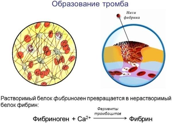 Норма фибриногена в крови и причины отклонения белка