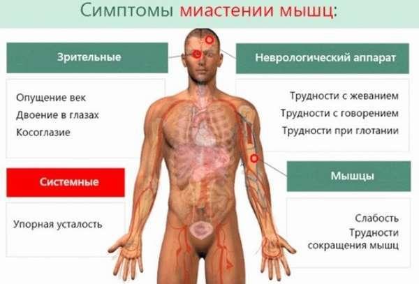 Синдром Итона-Ламберта – признаки, диагностика, лечение и возможные последствия