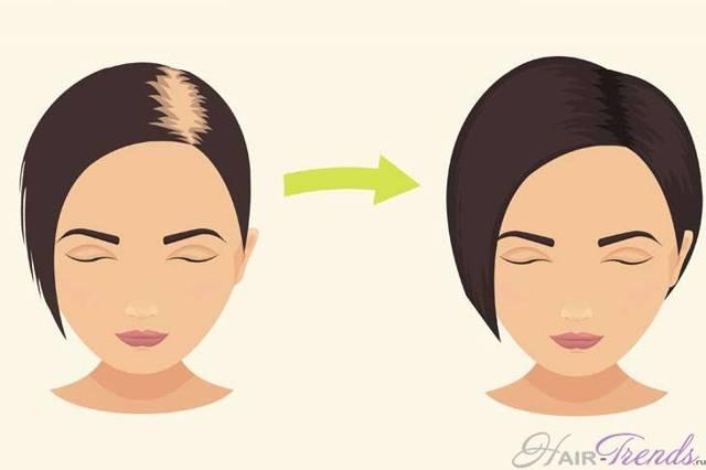 Выпадение волос при проблемах с щитовидкой
