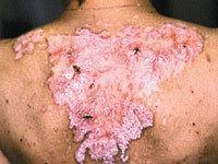 Что нужно знать о полимиозите, о редкой патологии, входящей в группу заболеваний под общим названием «миозит»