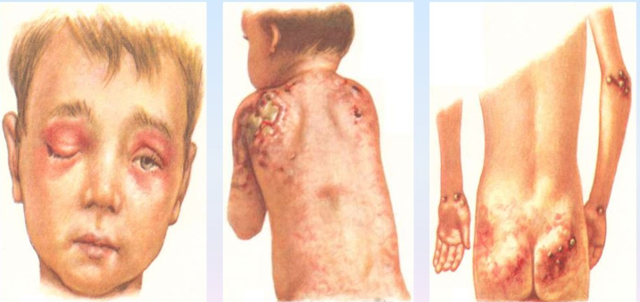 Дерматомиозит — диагностика и лечение