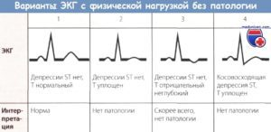 ЭКГ под нагрузкой: подготовка, процедура, расшифровка и возможные противопоказания