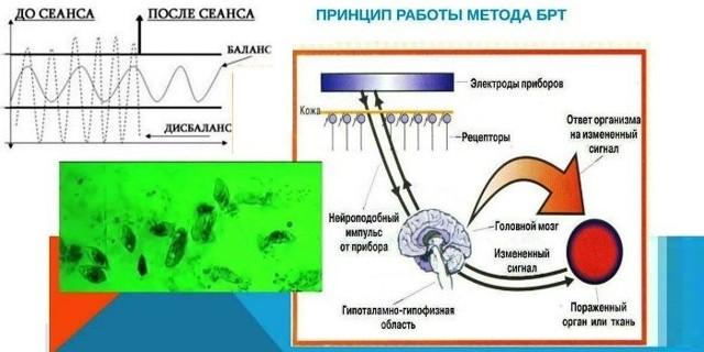Электронная биофункциональная органометрия: показания и противопоказания к обследованию