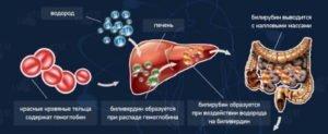 Причины повышения билирубина в крови и как снизить уровень пигмента