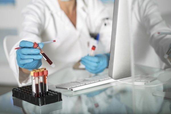 Анализ крови на тромбофилию: показания, виды и возможные результаты
