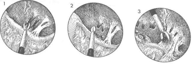 Спаечная болезнь малого таза: признаки, диагностика, лечение и прогноз