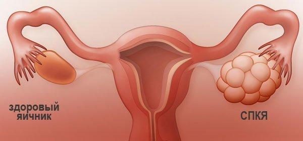 Диагностика антимюллерового гормона в Инвитро и расшифровка результатов исследования