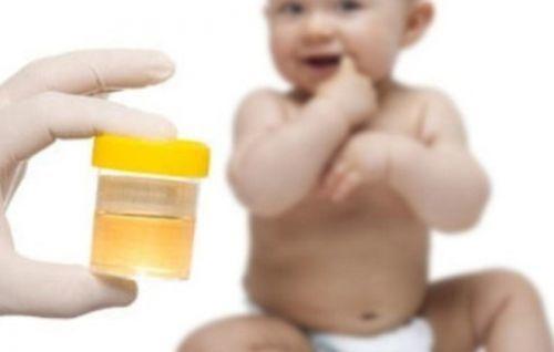 О чем свидетельствуют нитриты в моче?