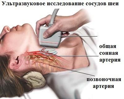 Признаки асимметрии кровотока по позвоночным артериям, методы диагностики и лечение патологии