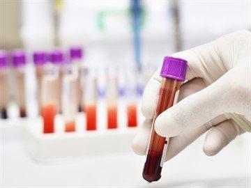 Как правильно сдавать анализ крови на гемоглобин и какова его норма?