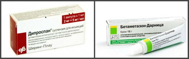 Реактивний артрит: симптомы, причины, диагностика и лечение