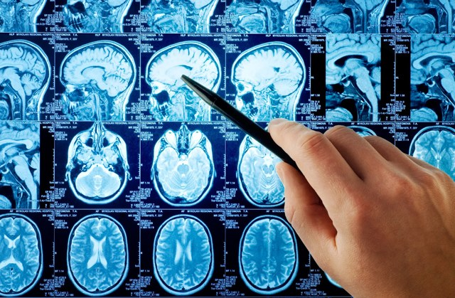 Синдром Гийена-Барре — как диагностируется?