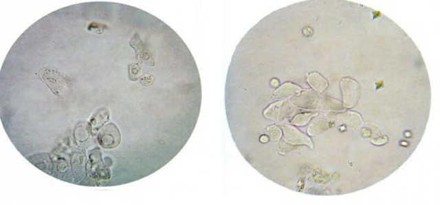 Клетки плоского эпителия в моче: диагностика, расшифровка анализа и возможные заболевания
